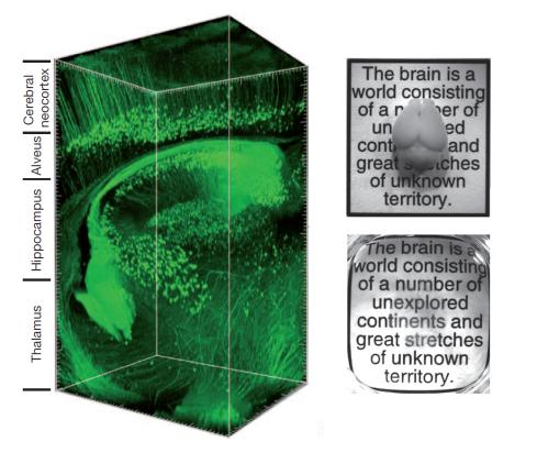 CLARITY Imaging Technique
