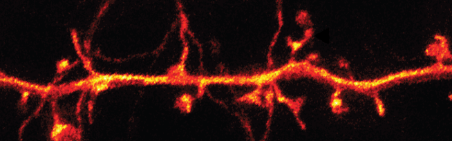 Superresolution microscopy in vivo