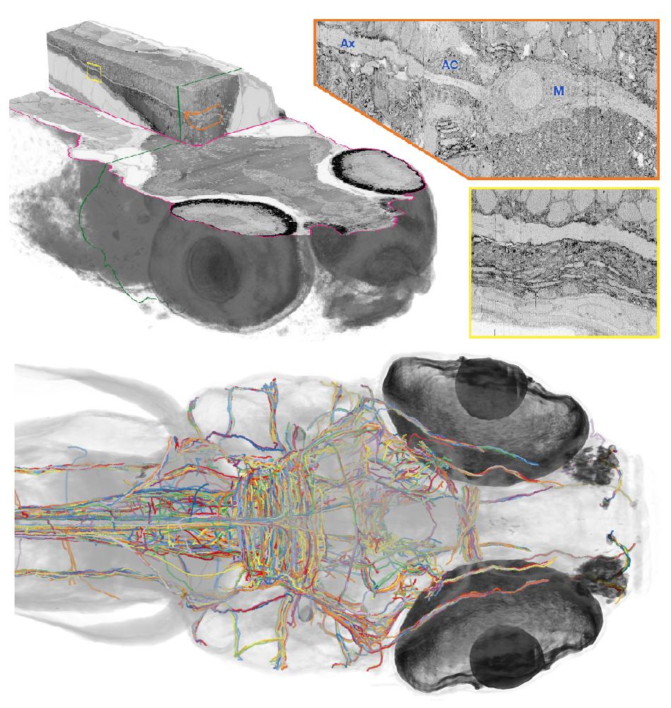 ssem of larval zebrafish brain