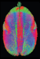 BrainMINDS marmoset tractography