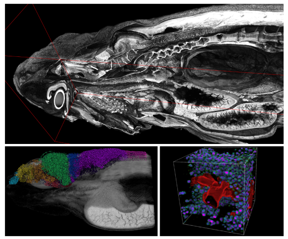 Synchrotron imaging of whole zebrafish