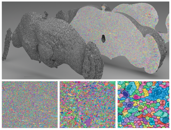 Whole-brain Drosophila ssTEM dataset segmentation